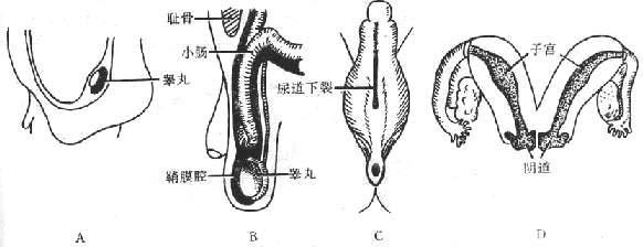 睾丸结构图片欣赏