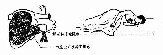 静脉输液法-医学-生物谷