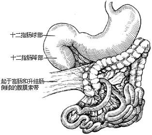 图3 腹膜索带压迫十二指肠造成梗阻