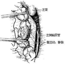 右半结肠癌切除术_医护教育--手术图库